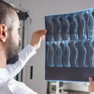 The Cost of Spinal Cord Injuries: Legal Ways to Seek Compensation